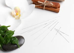 Acupuncture-Treatment-in-Palm-Beach-Gardens