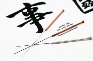 Acupuncture-Treatment-in-Palm-Beach-Gardens-Florida