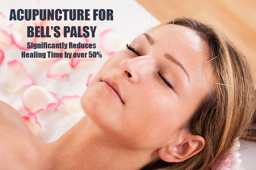 Acupuncture for Bell's Palsy in Palm Beach Gardens Florida
