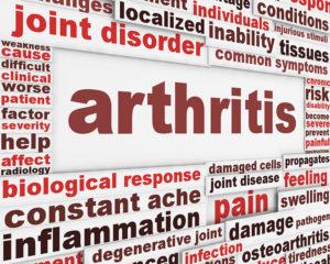 Acupuncture for Arthritis in Palm Beach Gardens Florida